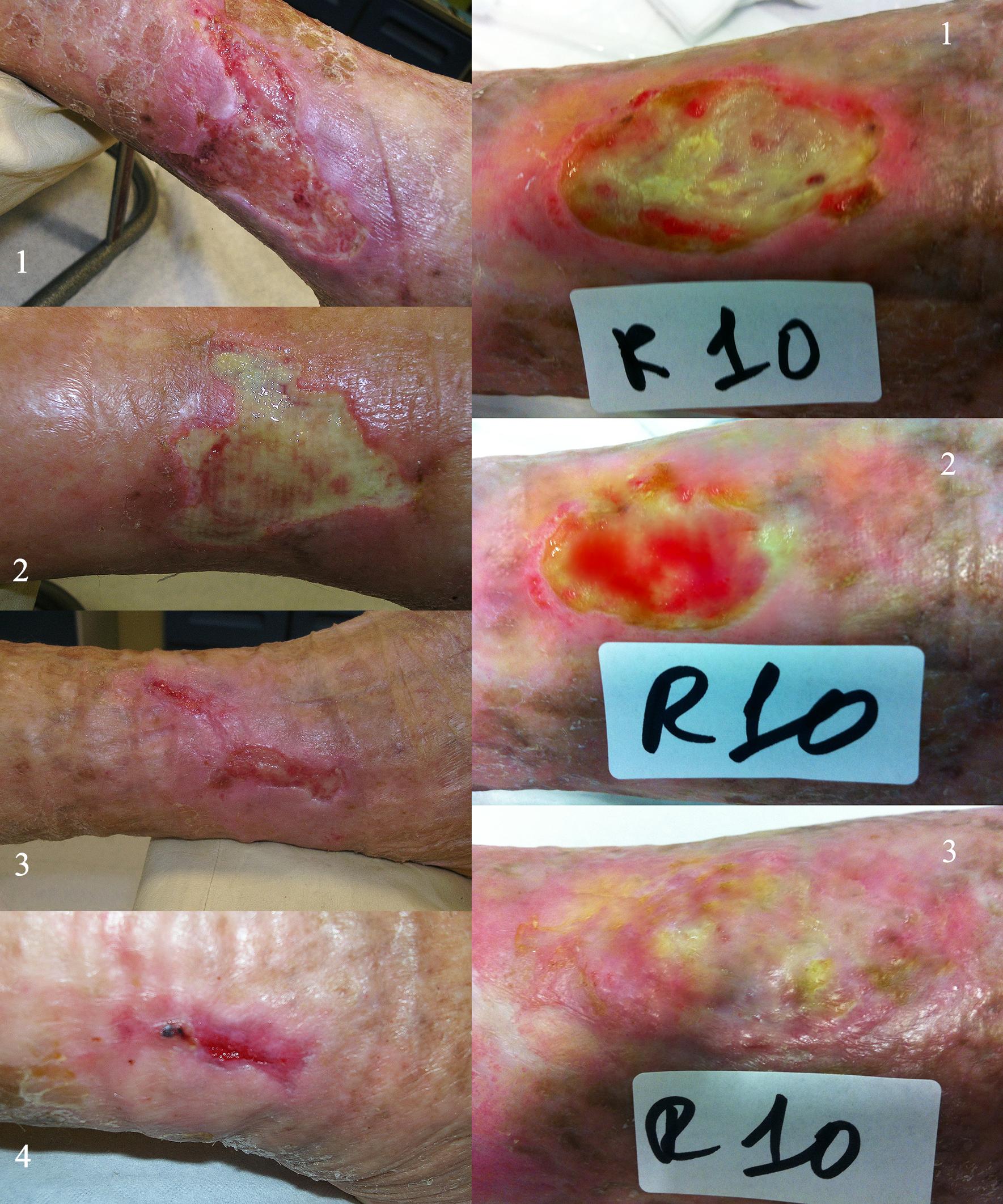 Ulcere Rinovacell